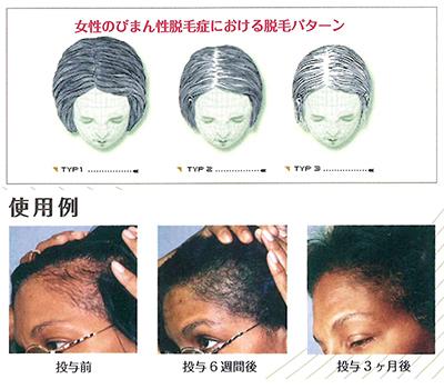 性 症 びまん 女性 原因 脱毛 女性特有の薄毛「びまん性脱毛症」20代でも急増中!原因と対策は?